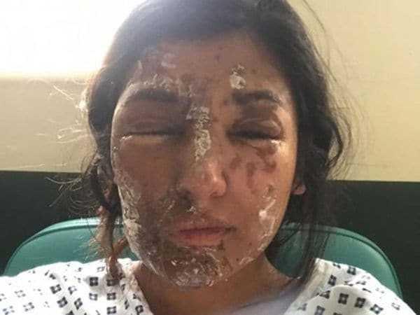 Así quedó Resham Khan tras la agresión con ácido