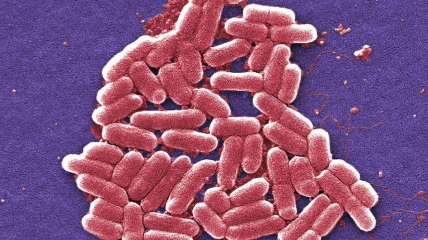 Científicos israelíes logran detectar bacterias resistentes y bacterias tolerantes