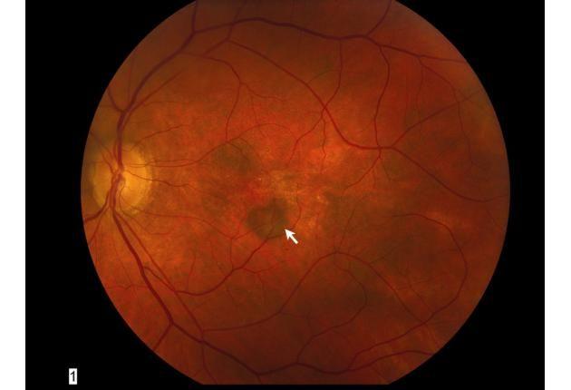 Investigadores israelíes utilizan células madre para tratar ceguera relacionada con la edad