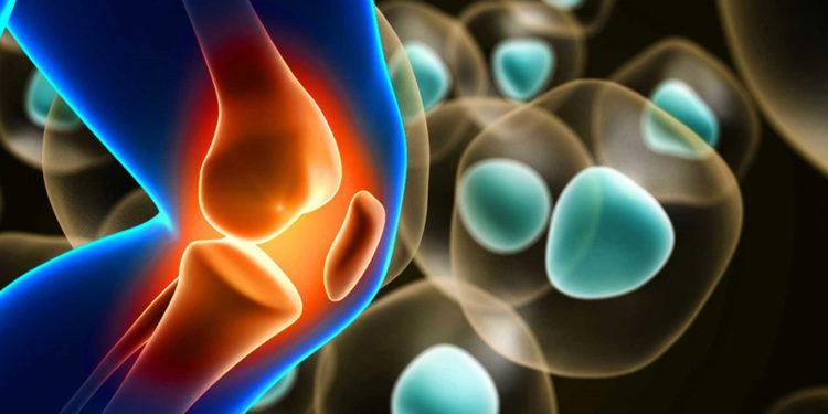 Empresa israelí revoluciona la regeneración del cartílago en la rodilla