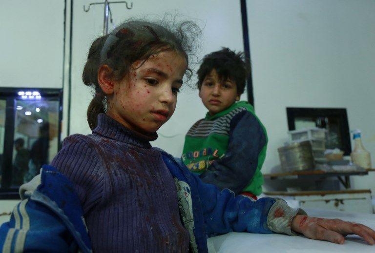 Dos niños sirios heridos esperan ayuda médica en un hospital improvisado tras los ataques aéreos de las fuerzas del régimen en la ciudad de Douma, en la sitiada región oriental de Ghouta, en las afueras de la capital, Damasco, el 23 de febrero de 2018. (AFP PHOTO / HAMZA AL-AJWEH)