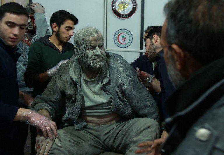 Un sirio herido salvado de los escombros llega a un hospital improvisado en la ciudad rebelde de Douma, en la sitiada región oriental de Ghouta, en las afueras de la capital, Damasco, tras los ataques aéreos de las fuerzas del régimen en la zona el 23 de febrero de 2018 . (AFP PHOTO / HAMZA AL-AJWEH)