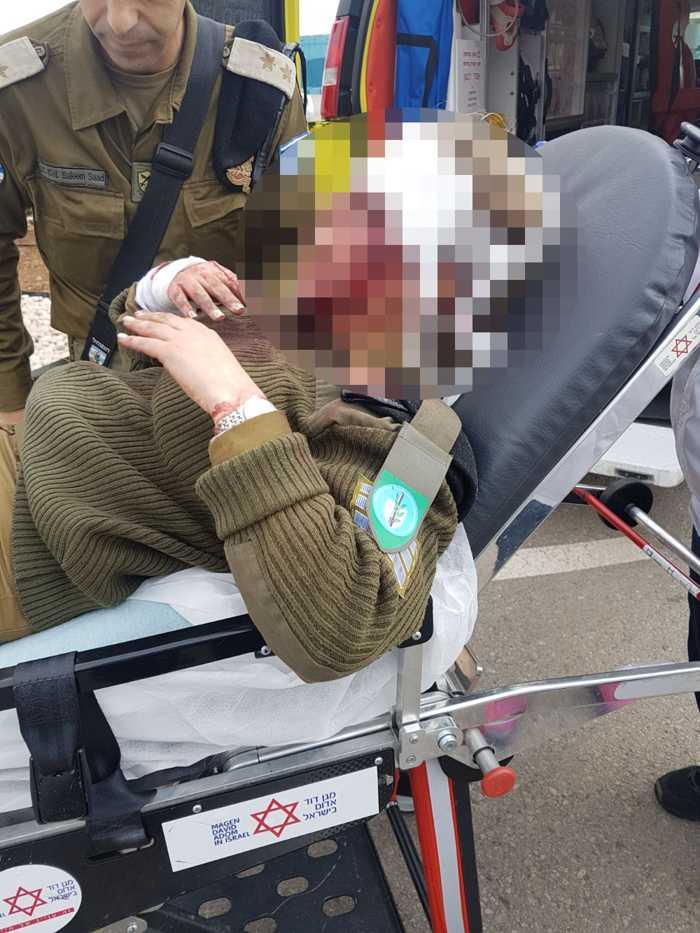 Soldado mujer herida en el ataque de turba árabe en Jenin