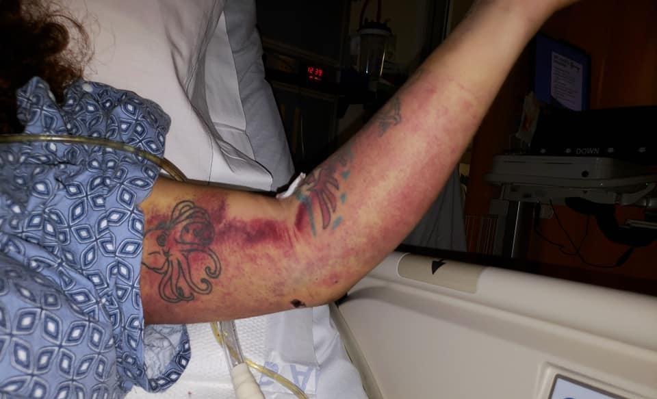 Así tenía el brazo Ángela Hernández cuando fue rescatada.