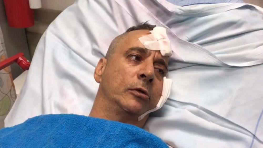 Aharon Bucharis recuerda el momento en que su casa Sderot fue alcanzada por un cohete el 14 de julio de 2018 (Captura de pantalla cortesía del Portavoz del Hospital Barzilai)