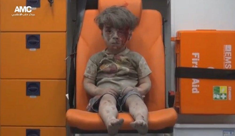 Niño herido en Alepo (Foto: AP)