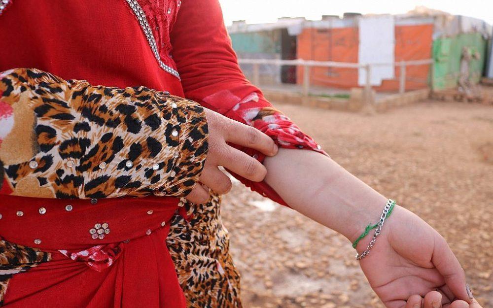 Salwa muestra la cicatriz en su muñeca. Es un recordatorio de una de las muchas veces que ha intentado suicidarse desde que la obligaron a casarse con un hombre físicamente abusivo a la edad de 14 años. (Lisa Khoury / Times of Israel)