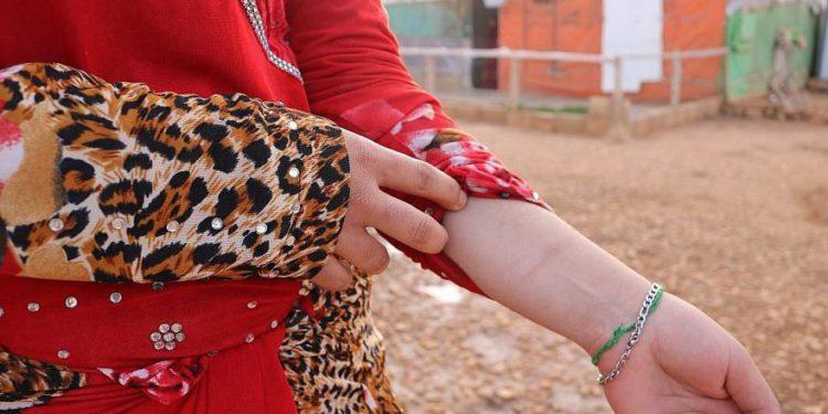 Forzadas a matrimonios abusivos, las novias menores de edad sirias recurren cada vez más al suicidio