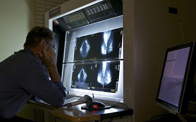 Ilustrativo: un doctor revisa mamografías (AP Photo / Damian Dovarganes)