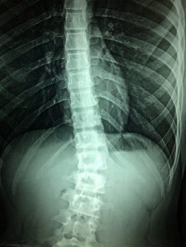 Una radiografía de la médula espinal. Foto a través de Pixabay.