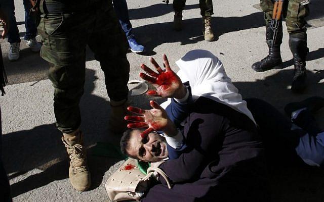 Una mujer palestina protege a su esposo herido cuando las fuerzas de seguridad palestinas intentan dispersar un mitin de simpatizantes de Hamas en Hebrón el 14 de diciembre de 2018. (Hazem Bader / AFP)