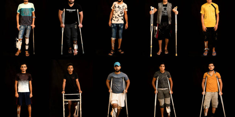 En esta combinación de 10 fotos tomadas el 19 de septiembre de 2018, los palestinos que recibieron disparos en las piernas durante manifestaciones y disturbios en la frontera de la Franja de Gaza con Israel esperan tratamiento en una clínica de la Ciudad de Gaza dirigida por MSF (Doctors Without Borders). (Foto AP / Felipe Dana)
