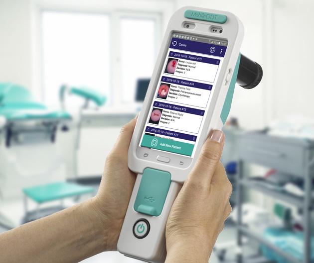 La empresa israelí MobileODT ha creado el Sistema Eva, que utiliza un algoritmo de evaluación visual automatizada (AVE), que ha demostrado ser más confiable que un experto humano cuando realiza una colposcopia para identificar tejido anormal que apunta a un posible desarrollo futuro del cuello uterino. cáncer (Cortesía)