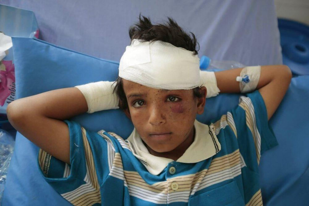 En este archivo del 12 de agosto de 2018, foto, un niño herido en un ataque aéreo de la coalición, liderado por Arabia Saudita, descansa en un hospital en Saada, Yemen. | Foto: AP Photo / Hani Mohammed, Archivo