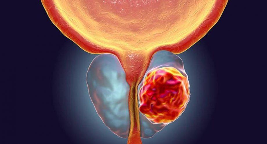 tratamiento de la próstata chipre