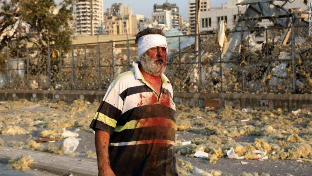 Residentes de Beirut describen las escenas apocalípticas tras la explosión masiva