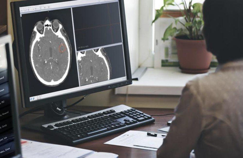 Amígdala del cerebro creció tras el cierre por coronavirus, según científicos israelíes