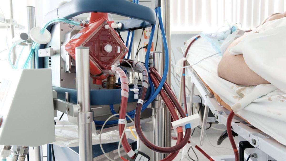 Covid-19 en Israel: Paciente de 22 años no vacunado es conectado a máquina ECMO
