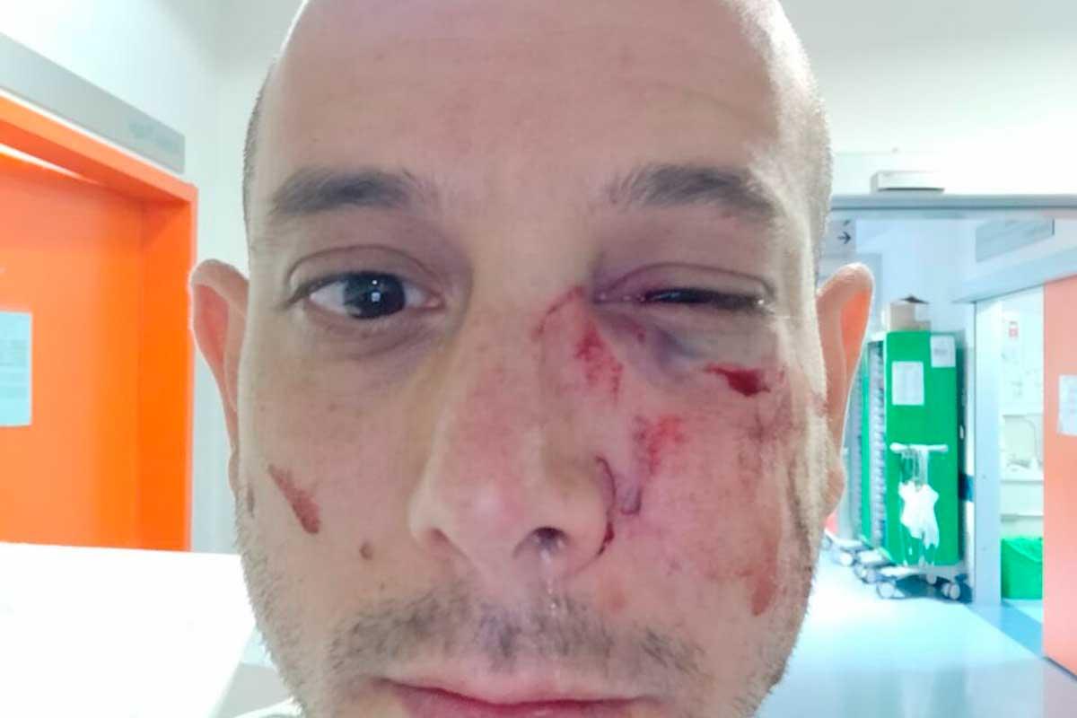 Turista israelí víctima de una agresión antisemita en Italia